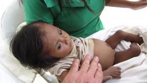 Mangelernährung: 6 Monate,4kg... nach langer Diskussion Transport ins Krankenhaus
